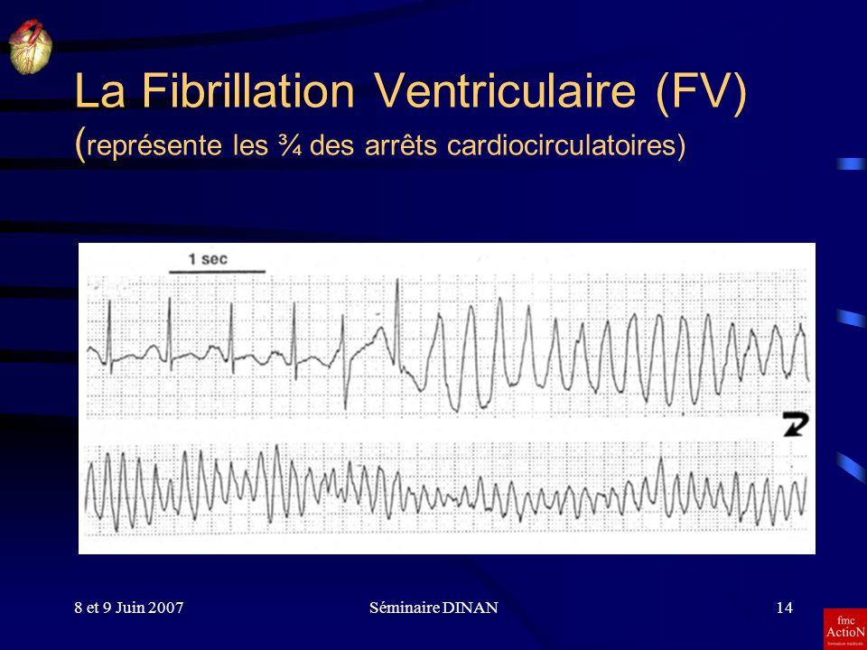La Fibrillation Ventriculaire (FV) (représente les ¾ des arrêts cardiocirculatoires)