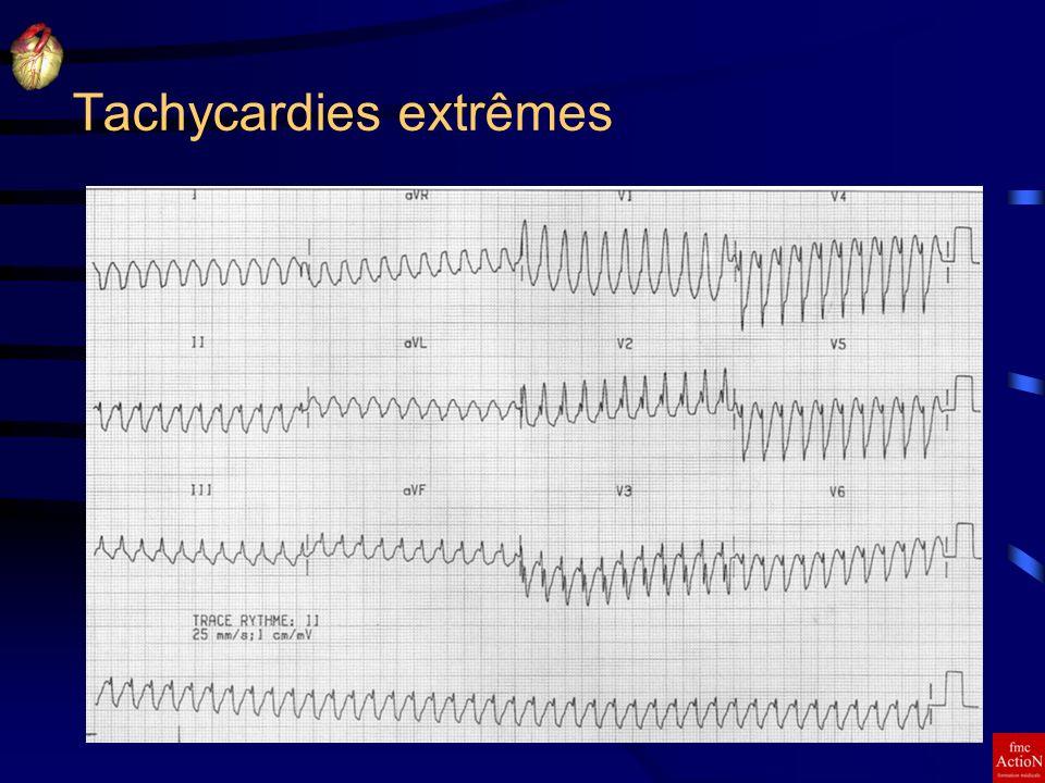 Tachycardies extrêmes