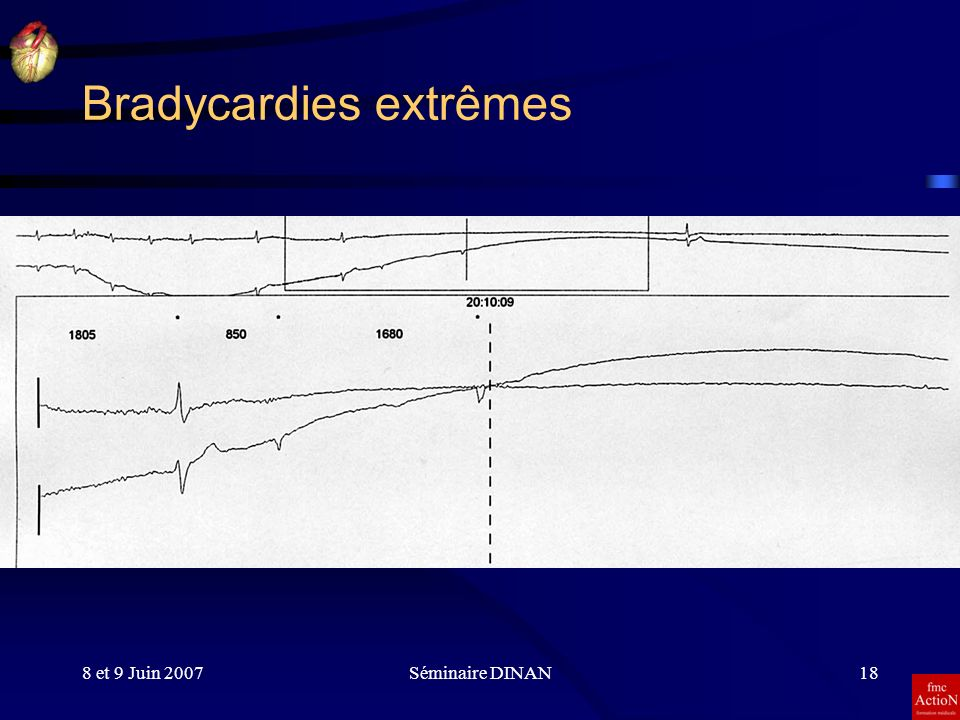 Bradycardies extrêmes