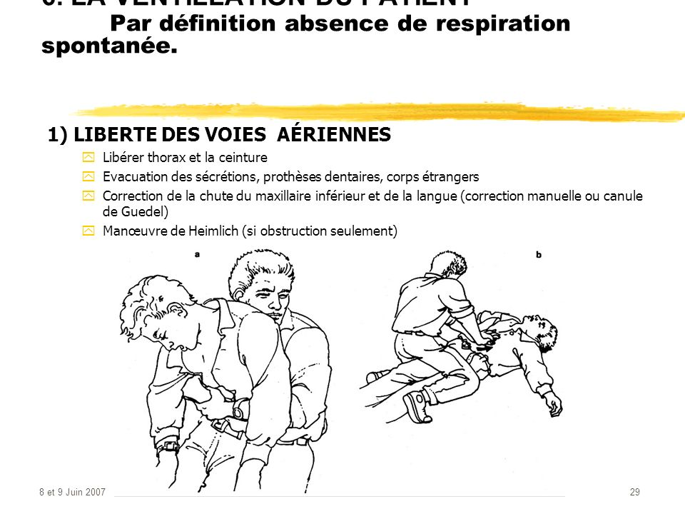 6. LA VENTILLATION DU PATIENT