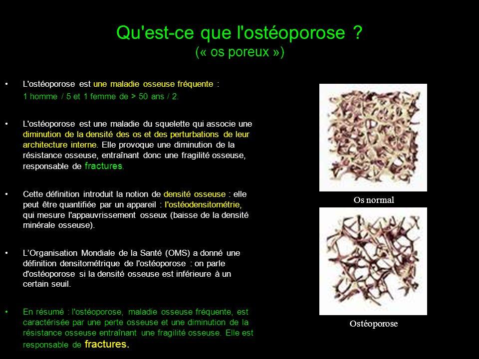 Qu est-ce que l ostéoporose (« os poreux »)