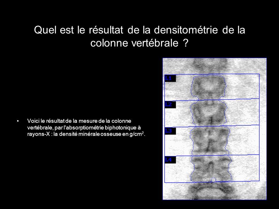 Quel est le résultat de la densitométrie de la colonne vertébrale