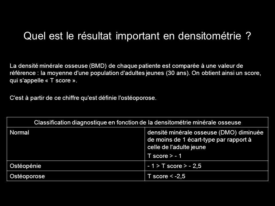 Quel est le résultat important en densitométrie