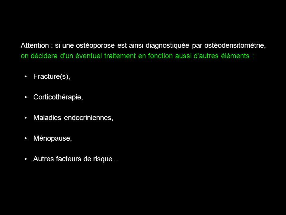 Attention : si une ostéoporose est ainsi diagnostiquée par ostéodensitométrie,