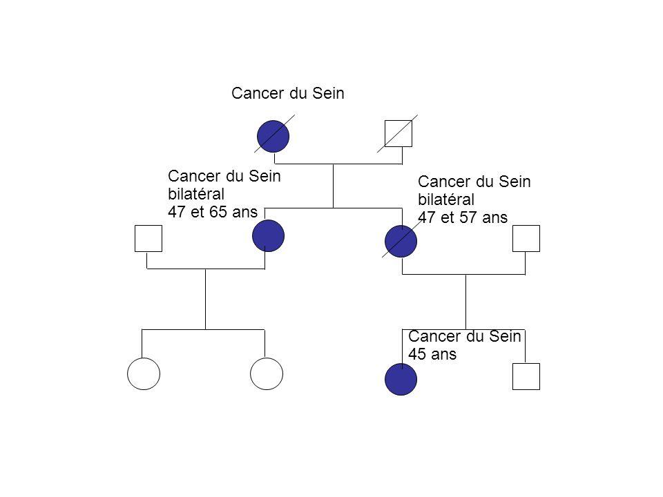 Cancer du Sein Cancer du Sein. bilatéral. 47 et 65 ans. Cancer du Sein. bilatéral. 47 et 57 ans.
