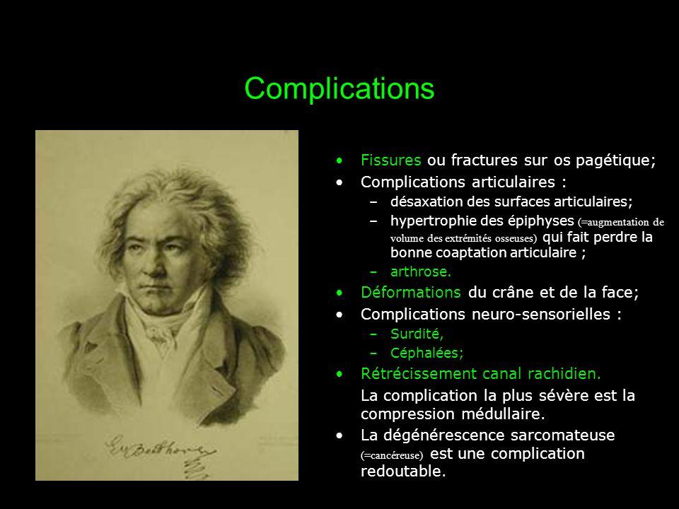 Complications Fissures ou fractures sur os pagétique;