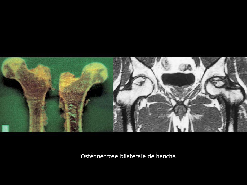 Ostéonécrose bilatérale de hanche