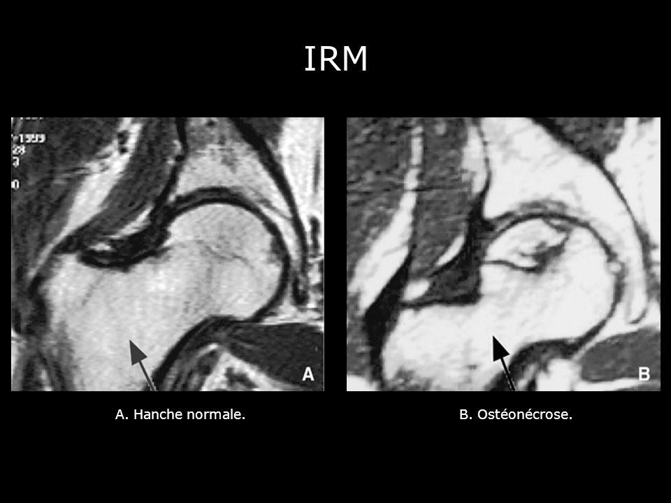 IRM A. Hanche normale. B. Ostéonécrose.