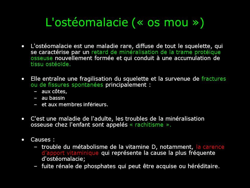 L ostéomalacie (« os mou »)