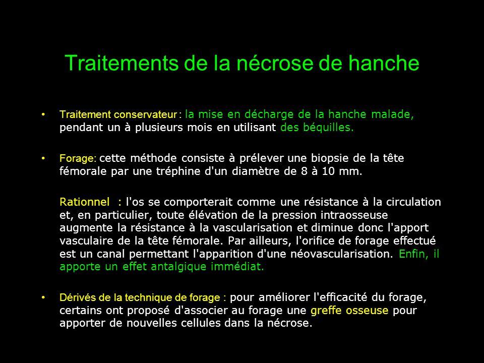 Traitements de la nécrose de hanche