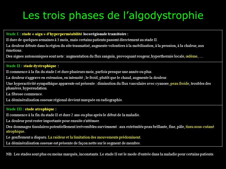 Les trois phases de l'algodystrophie