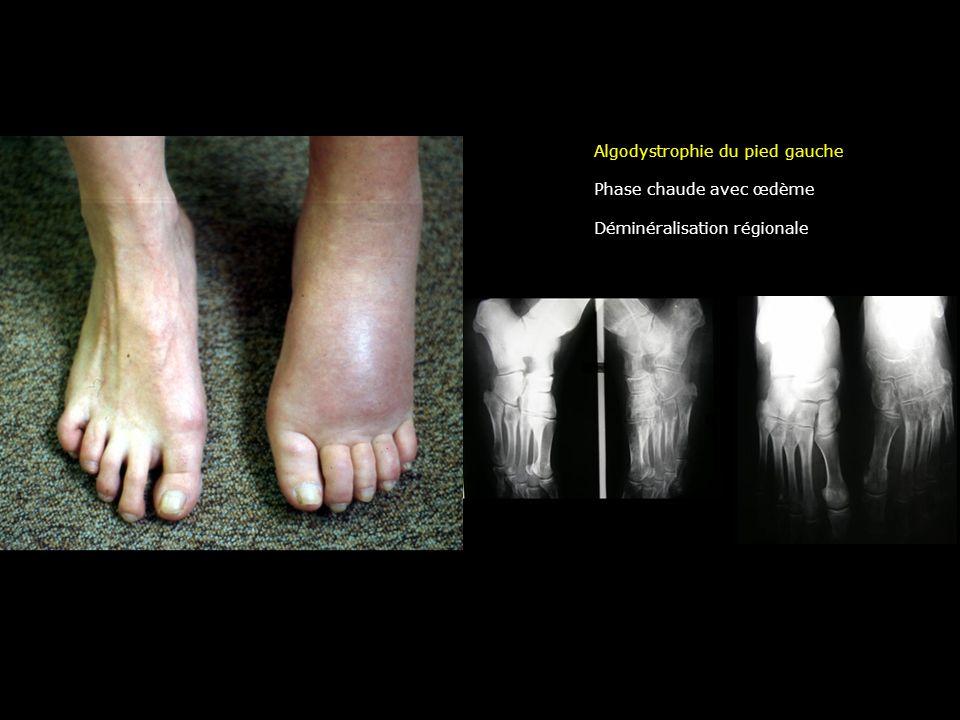 Algodystrophie du pied gauche
