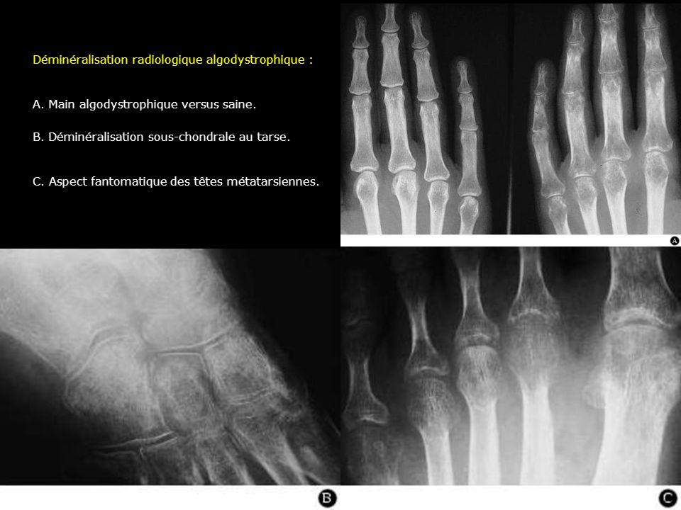 Déminéralisation radiologique algodystrophique :