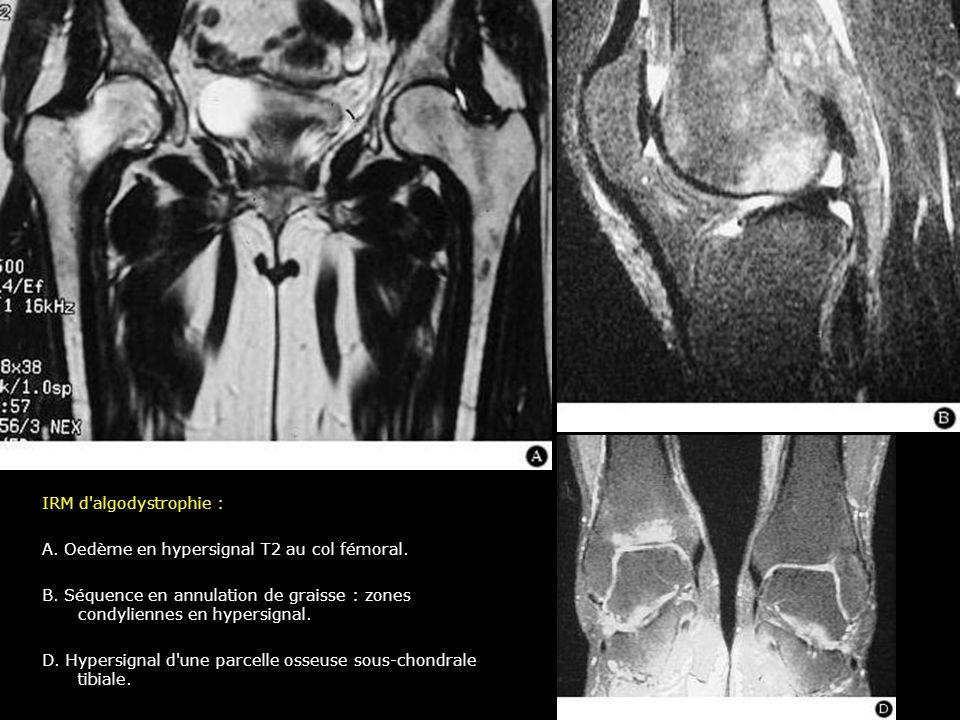 IRM d algodystrophie : A. Oedème en hypersignal T2 au col fémoral. B. Séquence en annulation de graisse : zones condyliennes en hypersignal.