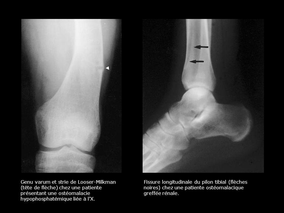 Genu varum et strie de Looser-Milkman (tête de flèche) chez une patiente présentant une ostéomalacie hypophosphatémique liée à l X.