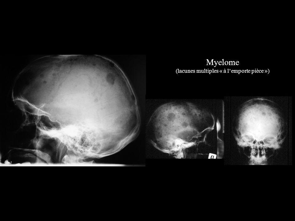 Myelome (lacunes multiples « à l'emporte pièce »)