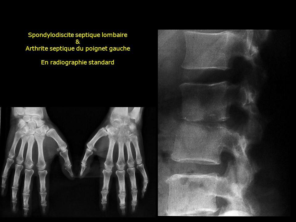 Spondylodiscite septique lombaire &