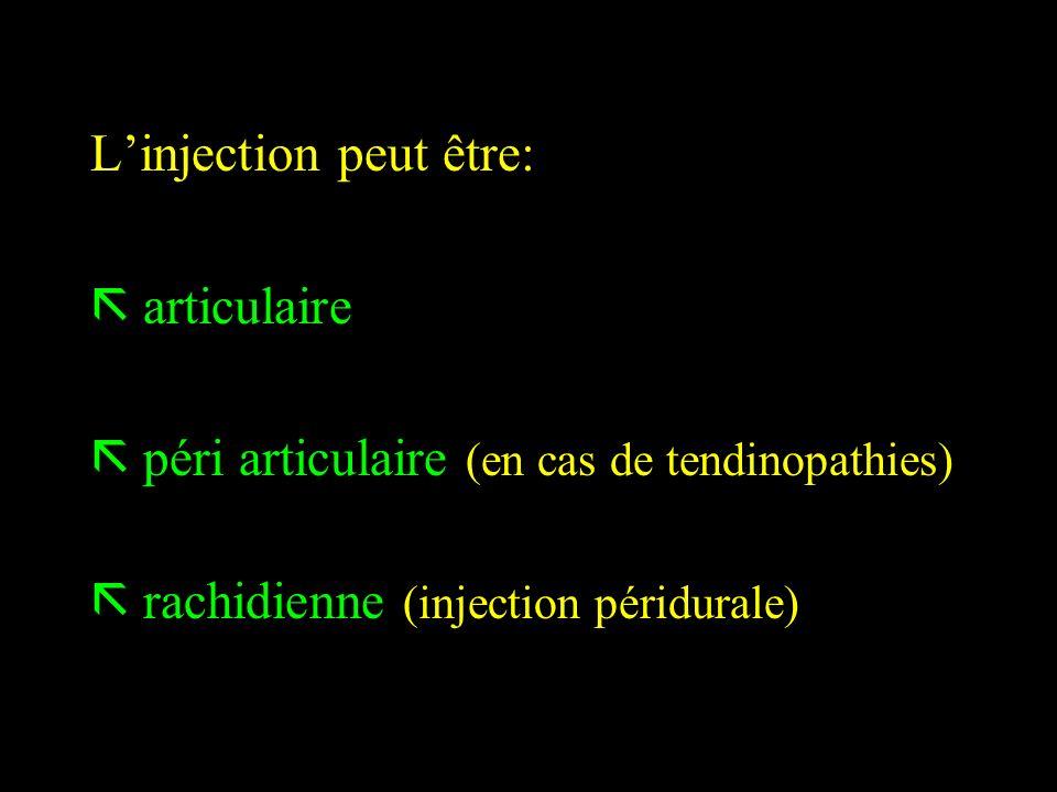 L'injection peut être: