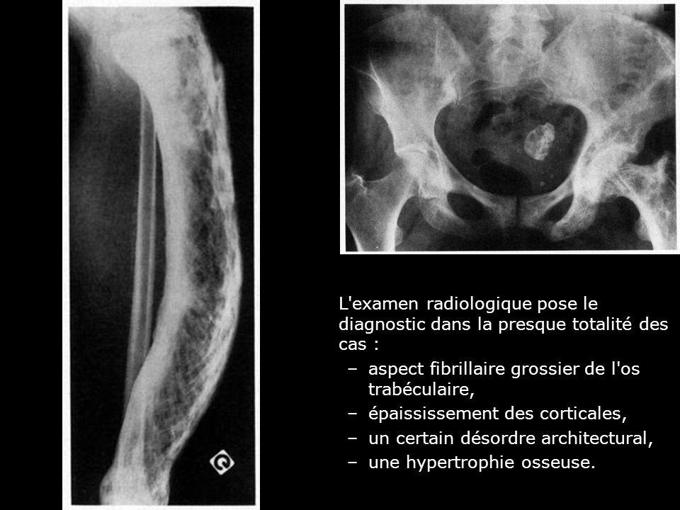 L examen radiologique pose le diagnostic dans la presque totalité des cas :
