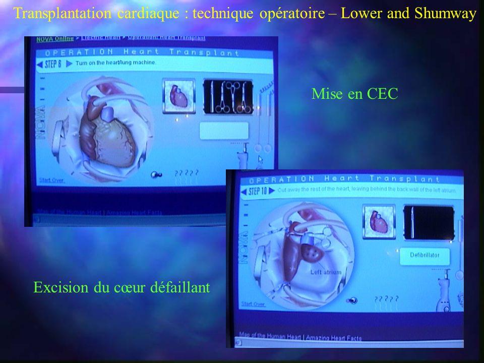 Transplantation cardiaque : technique opératoire – Lower and Shumway