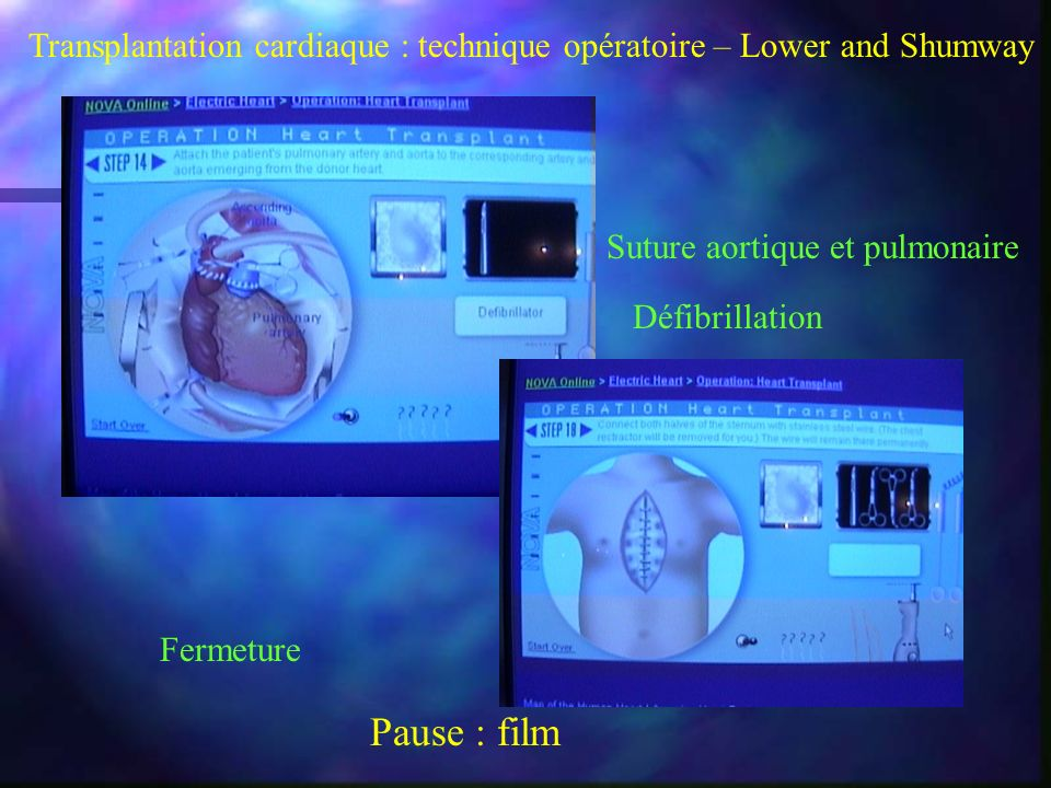 Transplantation cardiaque : technique opératoire – Lower and Shumway