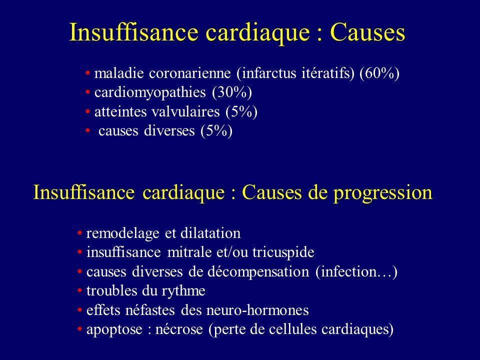 Insuffisance cardiaque : Causes
