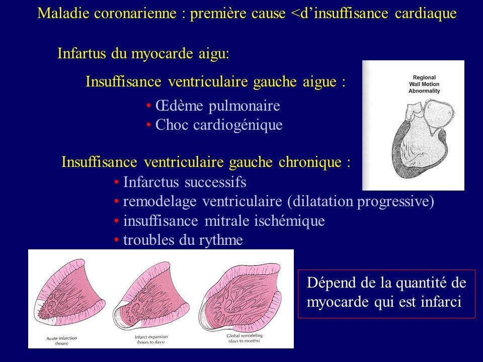 Maladie coronarienne : première cause <d'insuffisance cardiaque