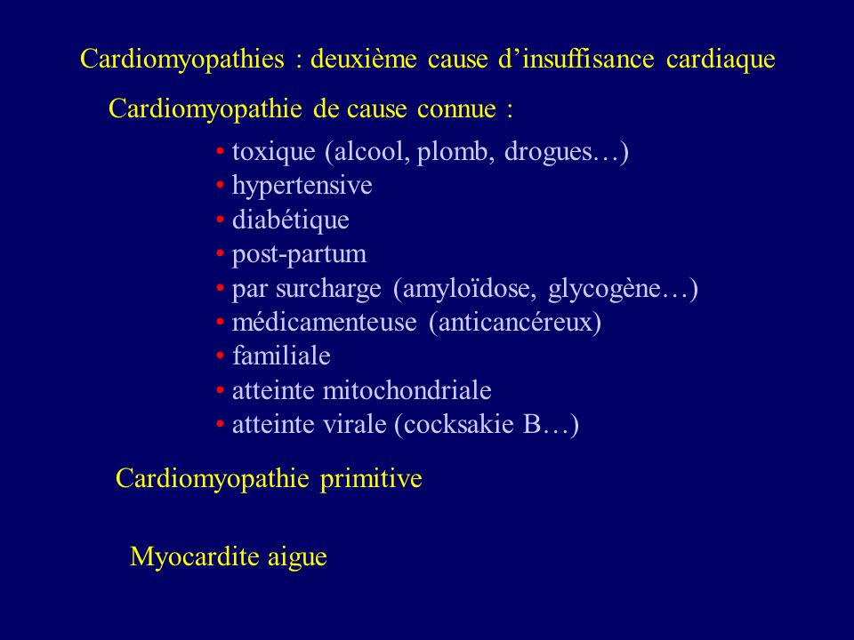 Cardiomyopathies : deuxième cause d'insuffisance cardiaque