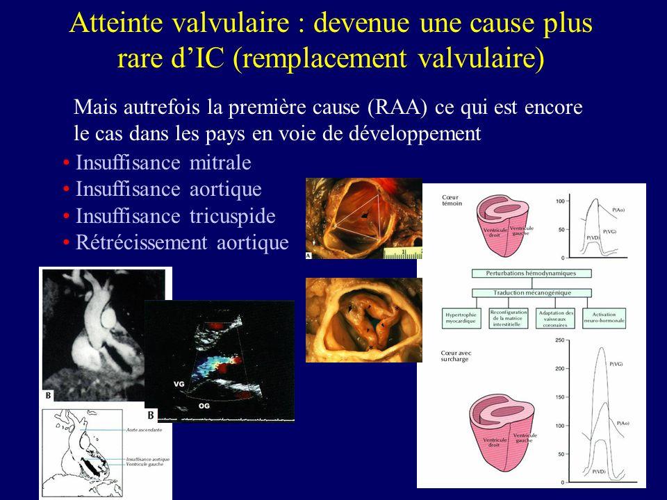 Atteinte valvulaire : devenue une cause plus rare d'IC (remplacement valvulaire)