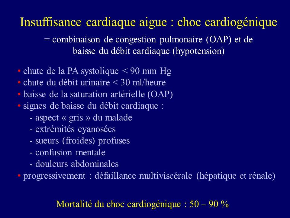 Insuffisance cardiaque aigue : choc cardiogénique