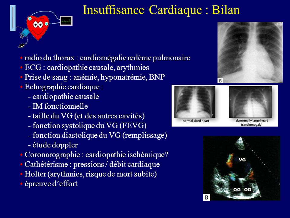Insuffisance Cardiaque : Bilan