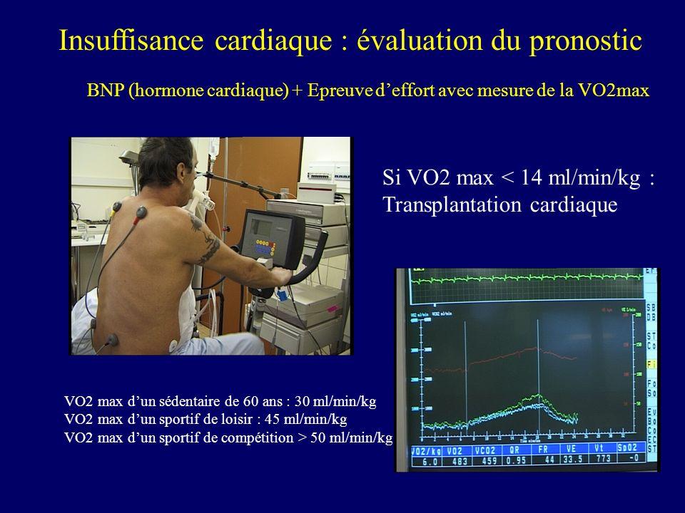 Insuffisance cardiaque : évaluation du pronostic