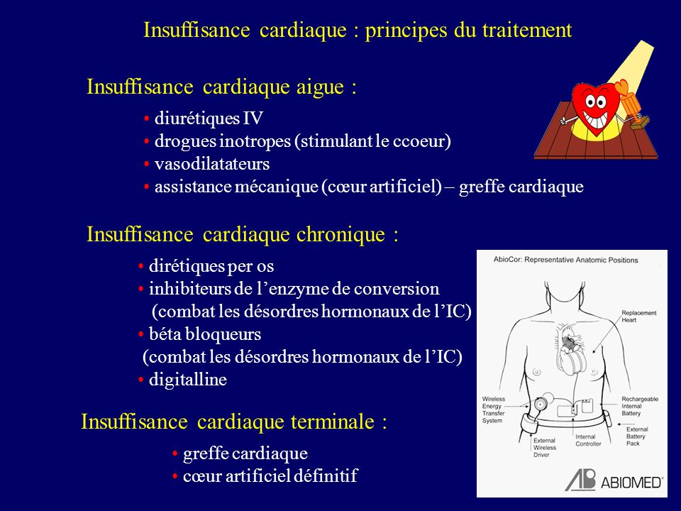 Insuffisance cardiaque : principes du traitement