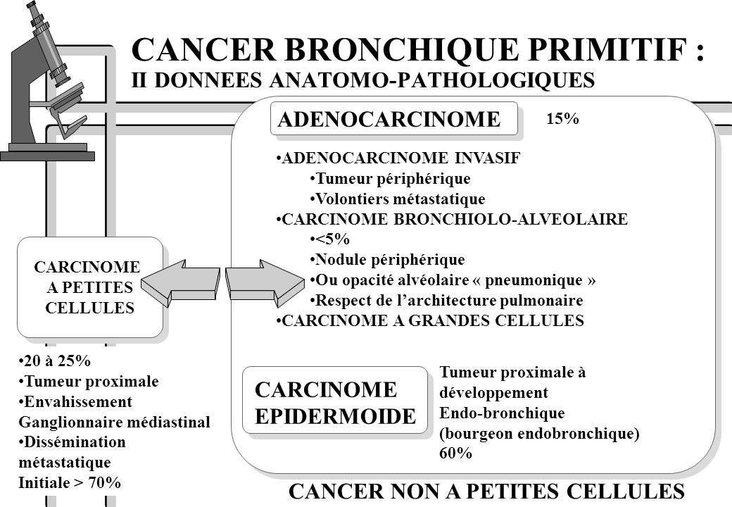 CANCER BRONCHIQUE PRIMITIF : II DONNEES ANATOMO-PATHOLOGIQUES