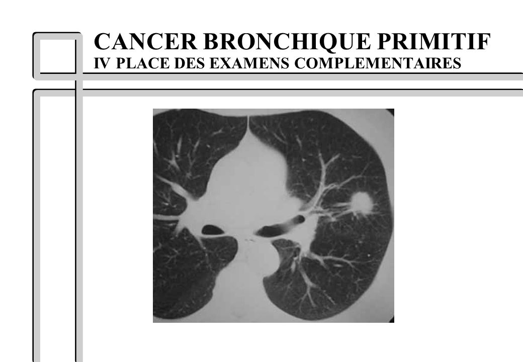 CANCER BRONCHIQUE PRIMITIF IV PLACE DES EXAMENS COMPLEMENTAIRES