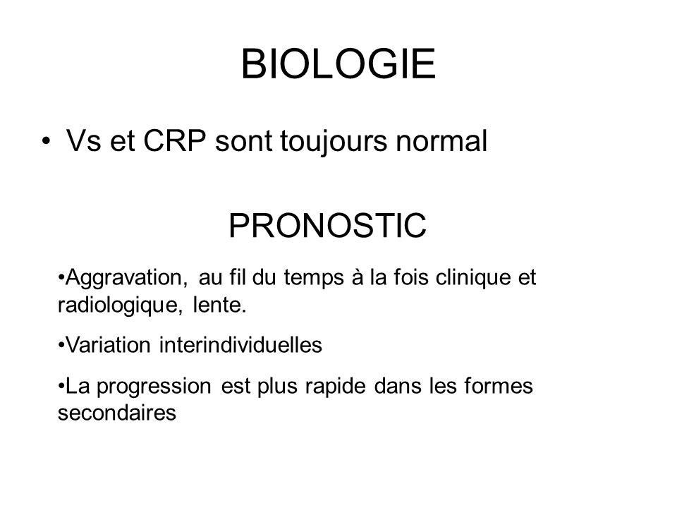 BIOLOGIE PRONOSTIC Vs et CRP sont toujours normal