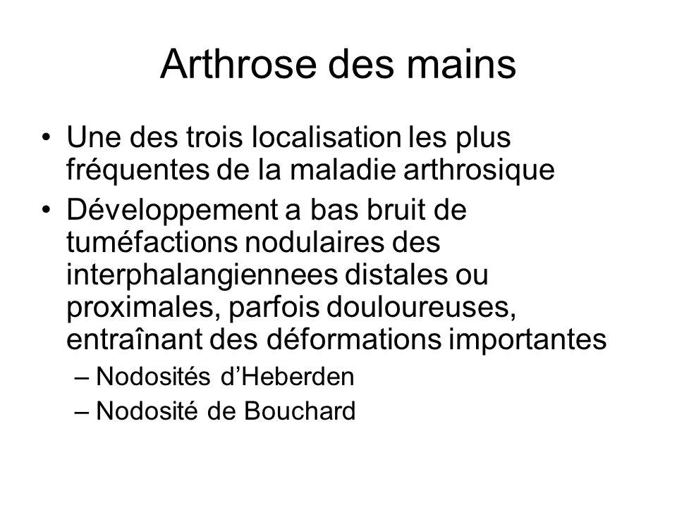 Arthrose des mains Une des trois localisation les plus fréquentes de la maladie arthrosique.