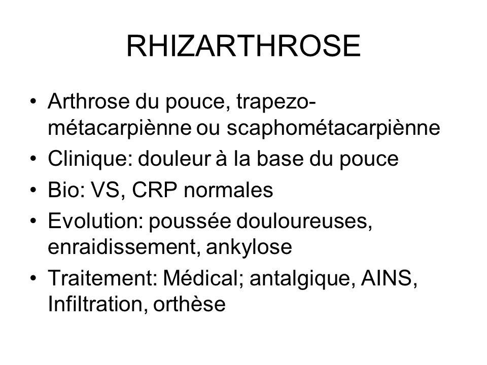 RHIZARTHROSE Arthrose du pouce, trapezo-métacarpiènne ou scaphométacarpiènne. Clinique: douleur à la base du pouce.
