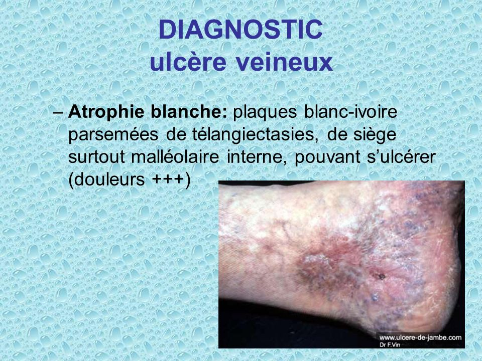 DIAGNOSTIC ulcère veineux