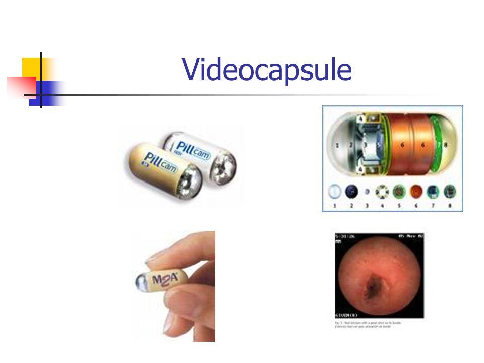 Videocapsule