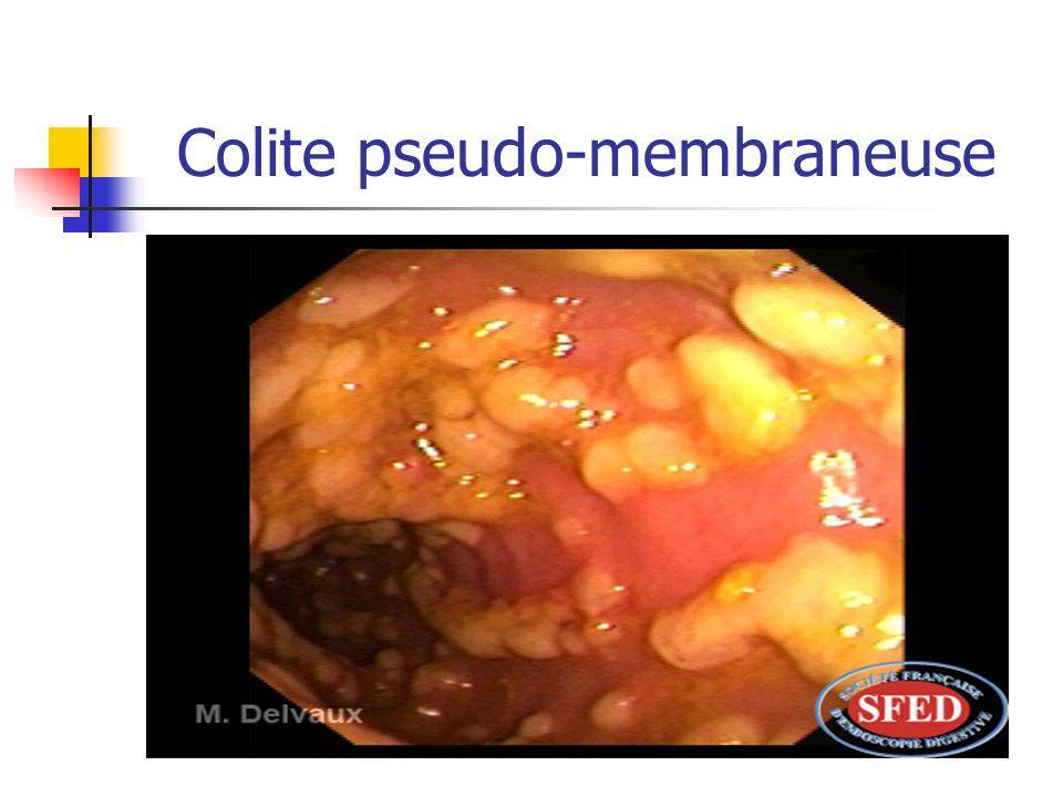 Colite pseudo-membraneuse