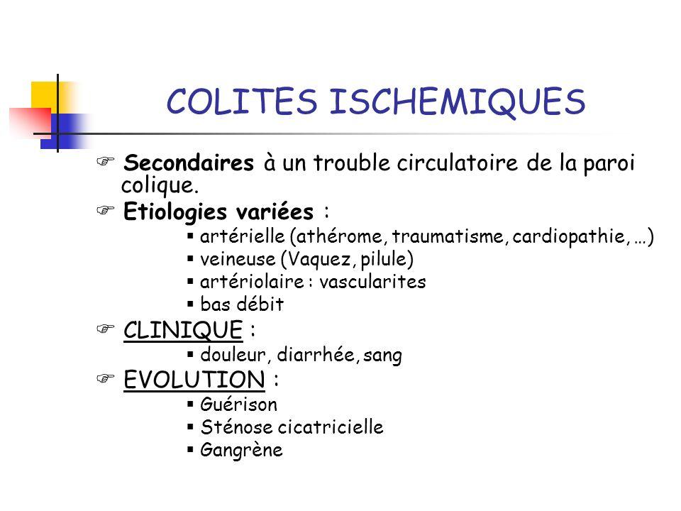 COLITES ISCHEMIQUES  Secondaires à un trouble circulatoire de la paroi colique.  Etiologies variées :
