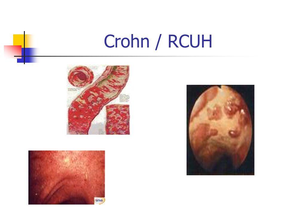 Crohn / RCUH