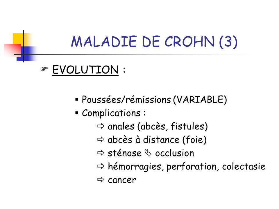 MALADIE DE CROHN (3)  EVOLUTION :  Poussées/rémissions (VARIABLE)