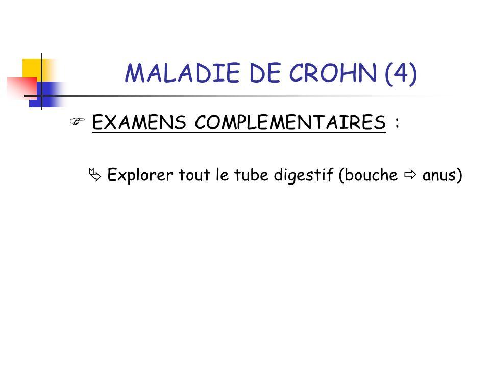 MALADIE DE CROHN (4)  EXAMENS COMPLEMENTAIRES :