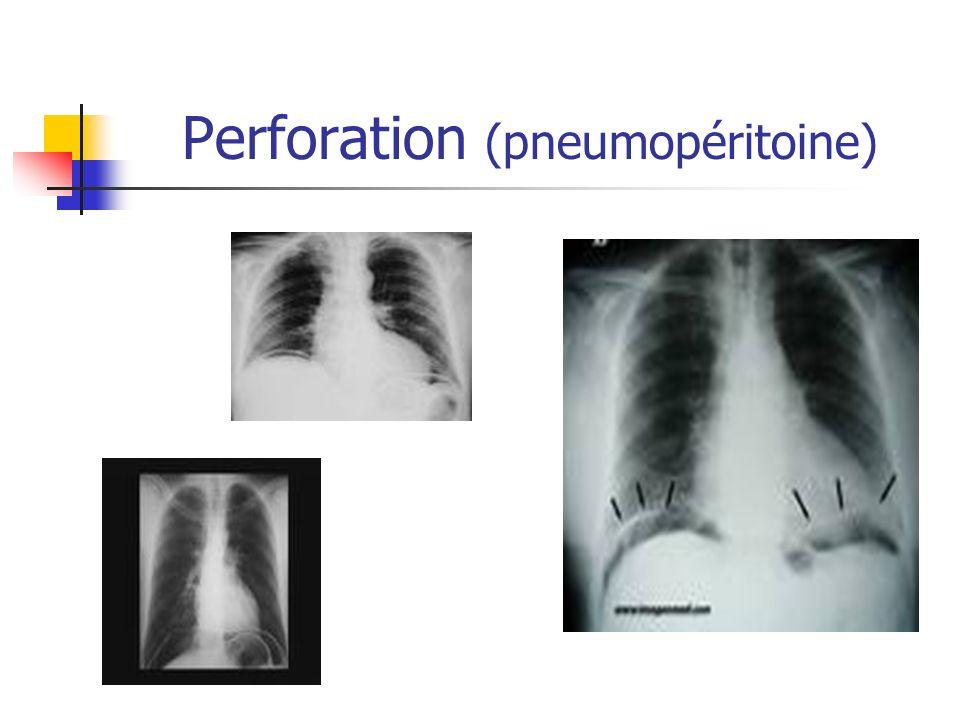 Perforation (pneumopéritoine)