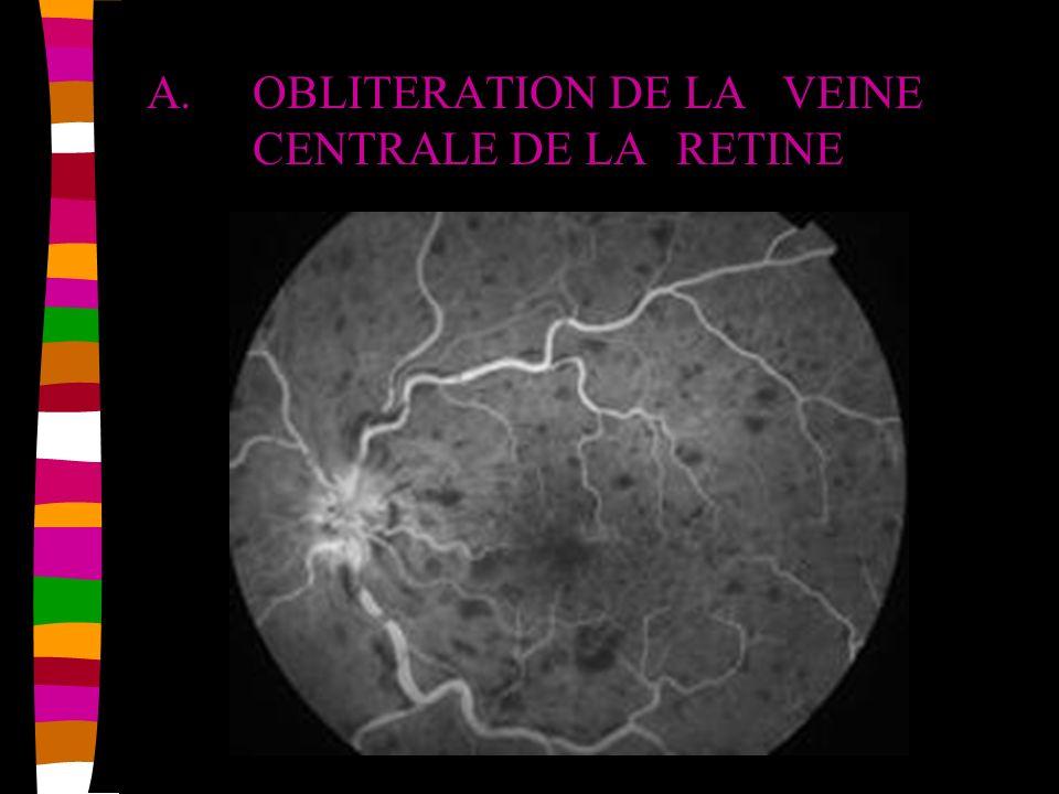 A. OBLITERATION DE LA VEINE CENTRALE DE LA RETINE