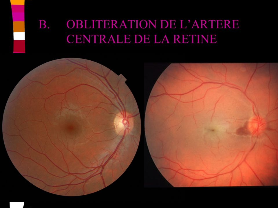 B. OBLITERATION DE L'ARTERE CENTRALE DE LA RETINE