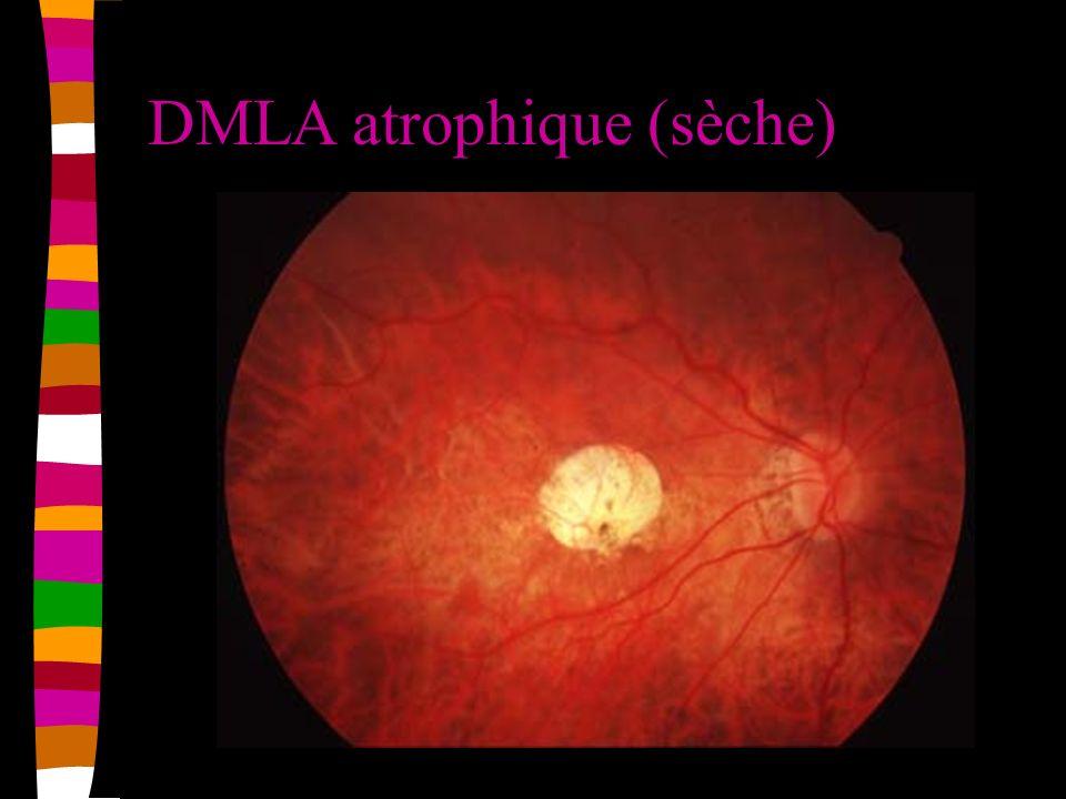 DMLA atrophique (sèche)