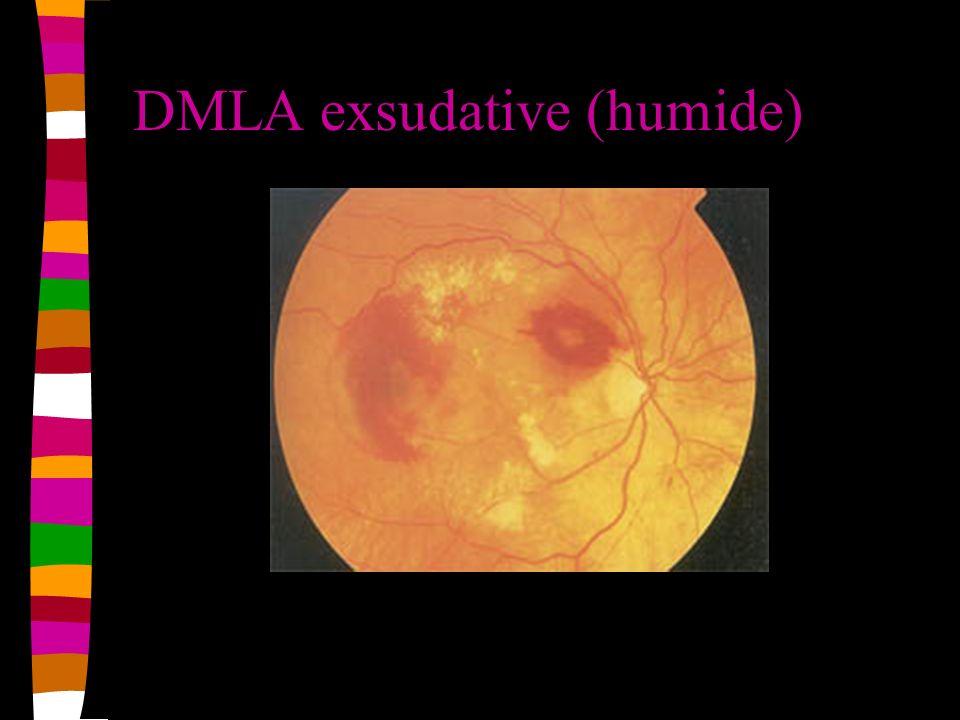 DMLA exsudative (humide)